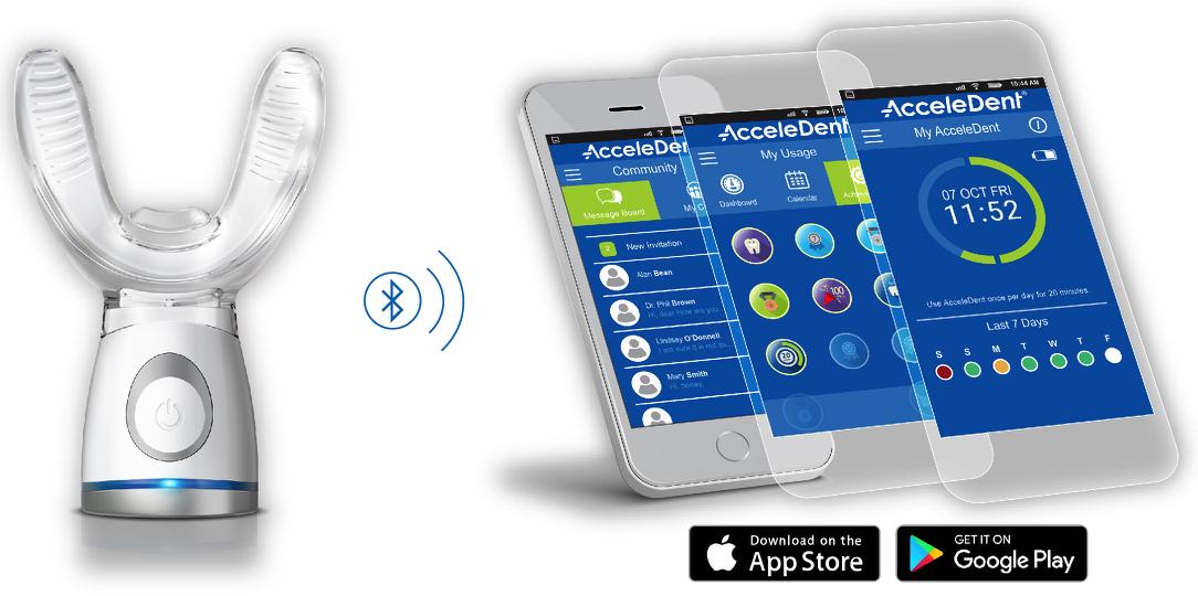 AcceleDent App